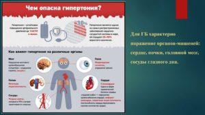 Внутреннее расследования ухудшения здоровья всвязи с инсультом на работе