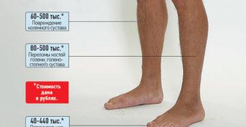 Как узнать конкретную сумму выплоты по страховке за перелом ноги